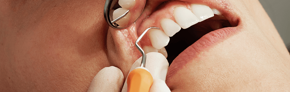 Zahnbehandlung Dr. Ringens